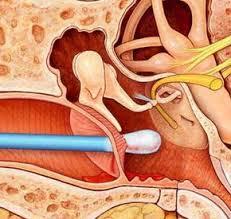 鼓膜穿孔的症状有哪些呢?
